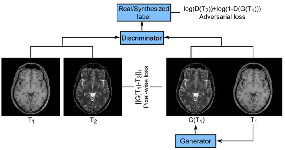 Image Synthesis in Multi-Contrast MRI with Conditional Generative Adversarial Networks